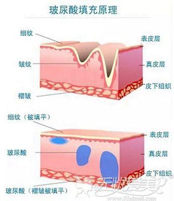 玻尿酸的填充原理