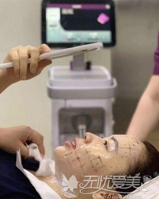 热玛吉治疗过程