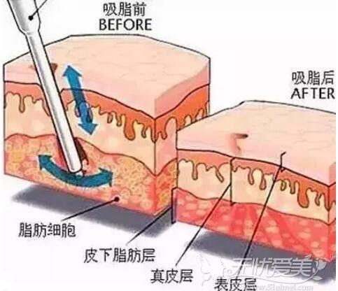 腰腹吸脂手术的原理