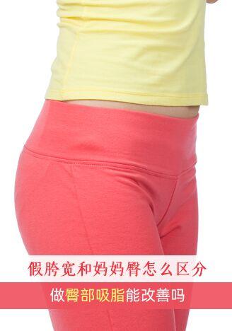 假胯宽和妈妈臀怎么区分?做臀部吸脂能改善吗?