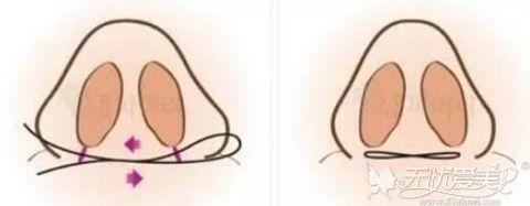 鼻翼外切法