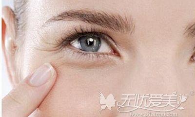 注射PRP可以消除眼部鱼尾纹