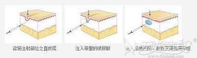 玻尿酸填充皱纹的原理
