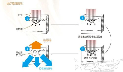 激光洗眉的过程原理