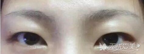肌肉型肿泡眼