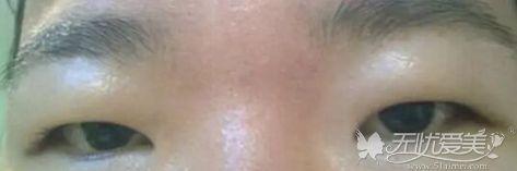 脂肪型肿泡眼