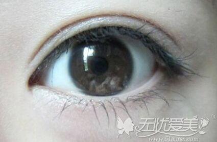 18岁做双眼皮手术