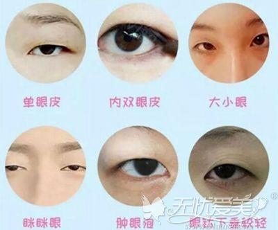双眼皮手术适应症