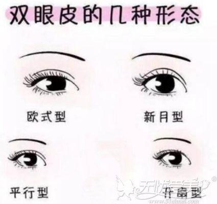 双眼皮的形态