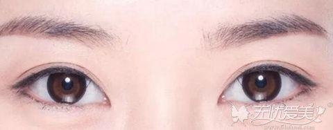 平行型双眼皮