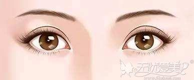 新月型双眼皮