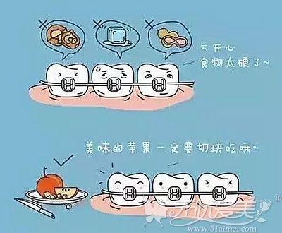 牙齿矫正后的术后护理