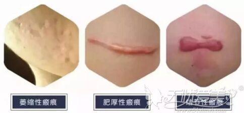 常见的疤痕类型