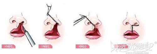 唇腭裂手术过程