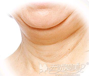 改善双下巴推荐做光纤溶脂