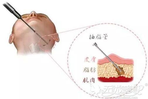 下颌缘吸脂手术原理