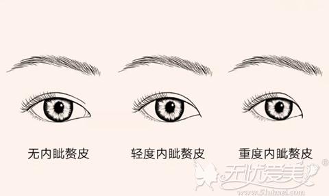 针对眼角有内眦赘皮的现象适合做开眼角手术