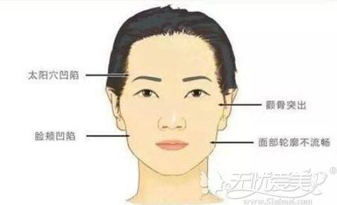 面部脂肪填充