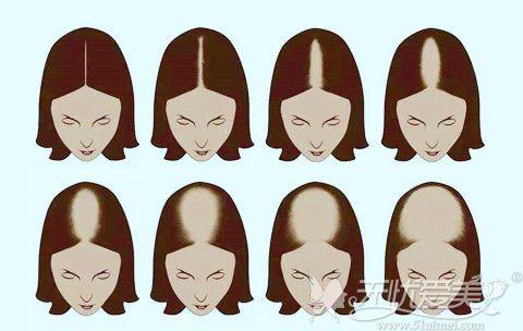 女性脱发、头发稀疏的等级