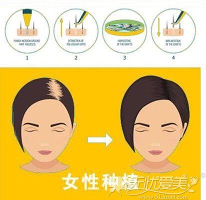 女性头发加密手术过程