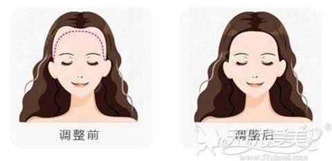 女性头发加密效果对比图
