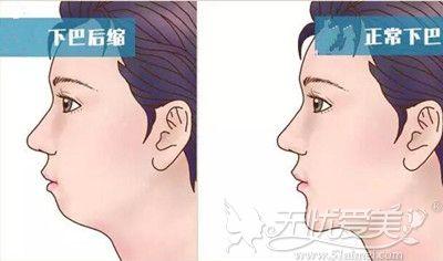 下颌后缩的正常下颌的区别
