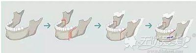 正颌手术的原理解析