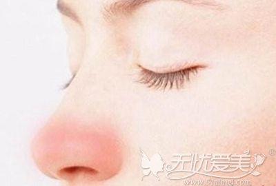 隆鼻后出现疤痕增生