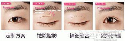 全切双眼皮手术的过程解析
