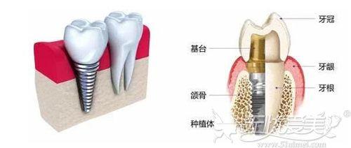 种植牙的位置