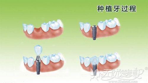 种植牙的原理过程