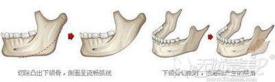 下颌角整形的手术原理