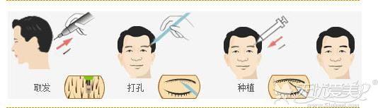 眉毛种植过程原理
