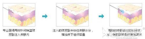 玻尿酸填充法令纹原理