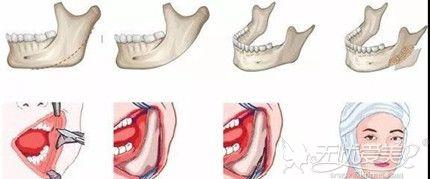 下颌角整形手术可以改善大饼脸