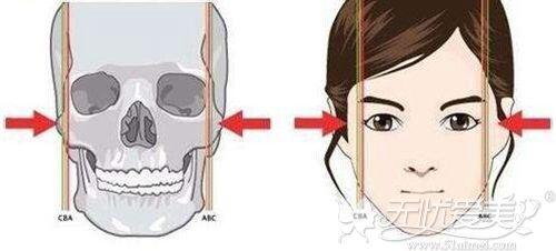 颧骨整形手术效果