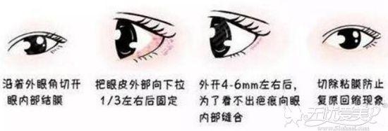 开后眼角和下眼角手术