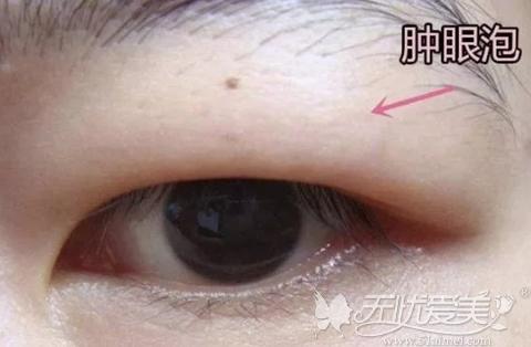 肿眼泡会增加眼部臃肿感影响美感