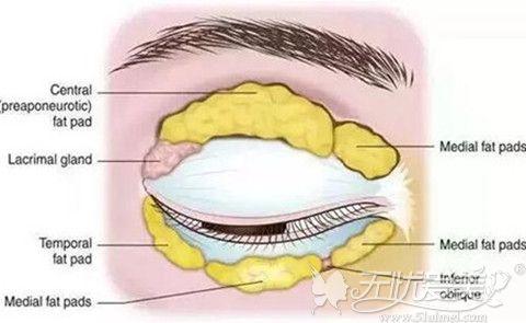 肿泡眼是由于眼部脂肪过多造成