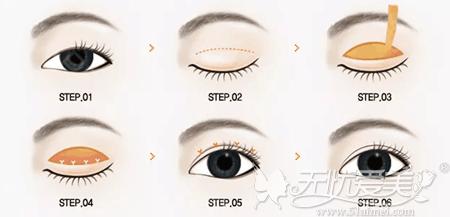 全切双眼皮手术可以改善肿泡眼眼部脂肪过多