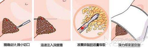 腰腹吸脂手术过程