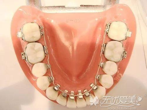 舌侧牙齿矫正器