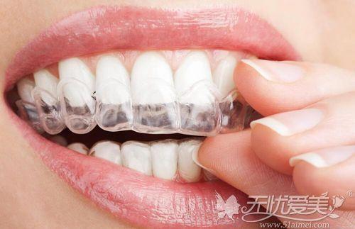 隐形牙齿矫正器