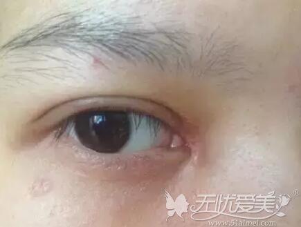 开眼角手术疤痕增生