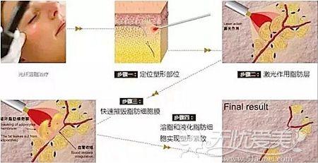 面部光纤溶脂的原理