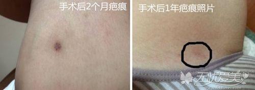 大腿吸脂手术后的疤痕