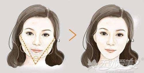 下颌角手术前后的变化