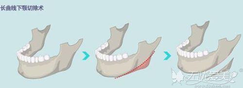 长曲线下颌角手术过程