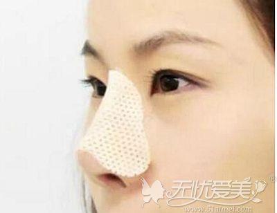 鼻骨内推术后需要戴鼻夹板固定