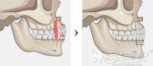 突嘴手术需要改变的地方